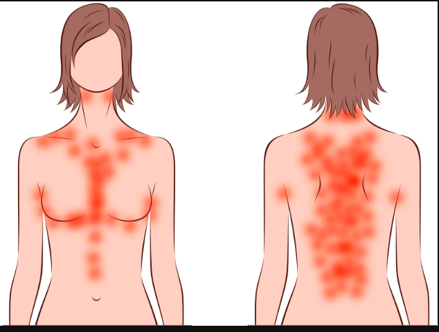 What is it Keto Rash How to resolve it?